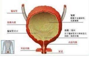 出血性膀胱